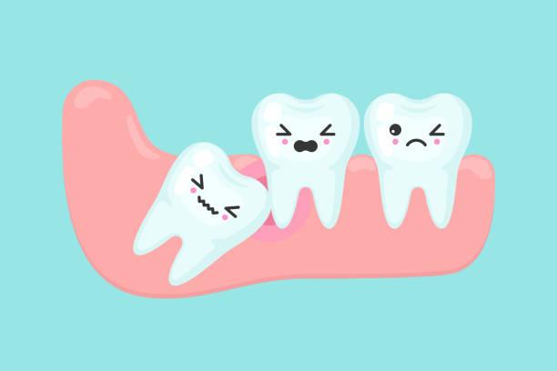 Что делать с зубами мудрости: удалять или нет?